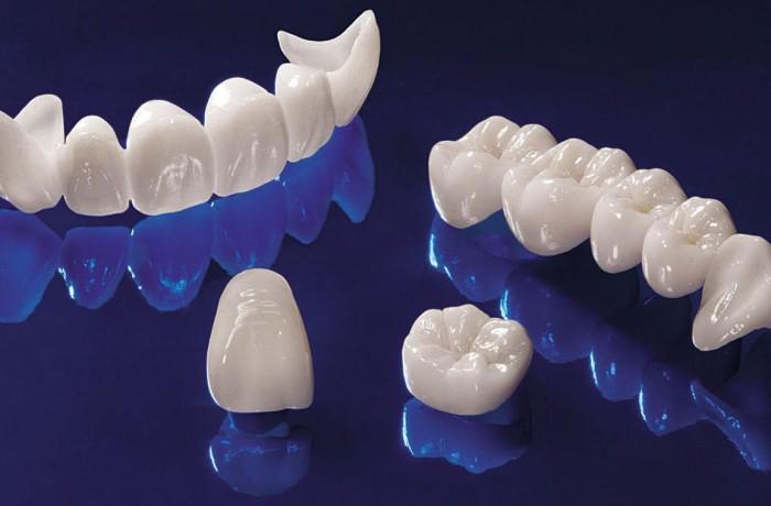 """Что такое """"зубные коронки"""""""