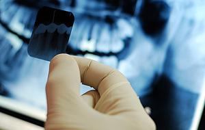 Цифровые стоматологические рентгенограммы