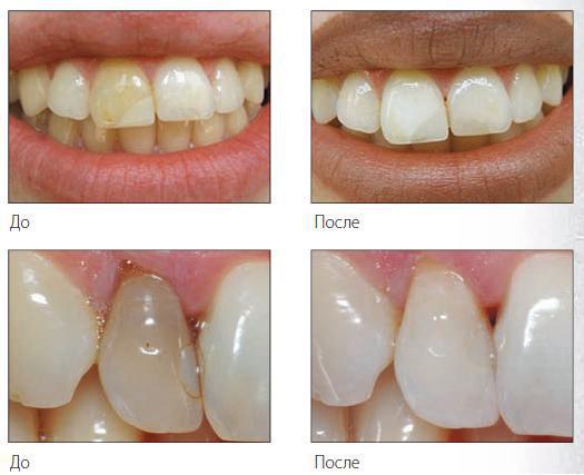Чем отбелить депульпированный зуб