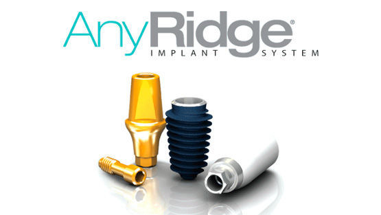 Имплантаты AnyRidge
