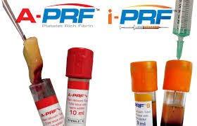 A-PRF и I-PRF